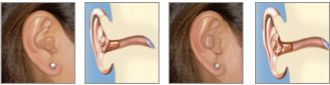 Hearing Aid Technology - Open Fit Technology